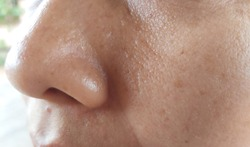 freckles cheek and oily skin on face and nose on woman