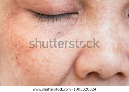 freckles on the face.  Wrinkles of age and time. Skin problems. Skin massage treatment and care for women ストックフォト ©
