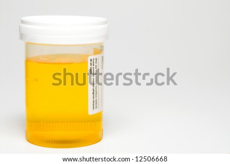 Fresh Urine Sample