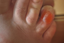 Friction blister - small pocket of body fluid within the upper layers of the skin, usually caused by forceful rubbing.