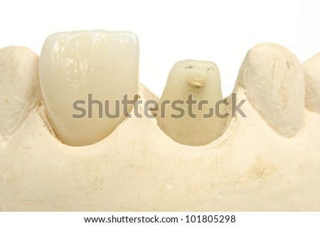 front crown, stump, plaster model