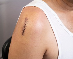 Front side closeup view of surgical incision on upper right shoulder joint closed with sutures