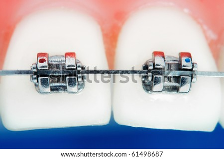 Front teeth braces super macro , shallow depth of field - stock photo