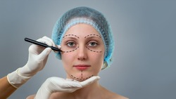Front view of a plastic surgeon drawing lines on a face of young woman prior to cosmetic surgery. Concept of visage improvement and beauty healthcare in clinic.