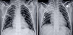 frontal chest x-ray with right apical atelectasis