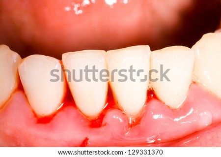 Frontal teeth after tartar removal, dental treatment