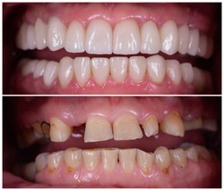 full mout recovery by press ceramic crowns and implants