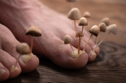 Fungi grow from the nail plates on the feet. Concept of nail fungus, skin and nail infections. Two legs with a fungus close-up in the background light.