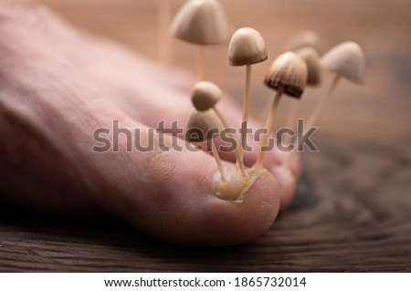 Fungi grow from the nail plates on the foot. Concept of nail fungus, skin and nail infections. Foot with fungus close-up in the background light.