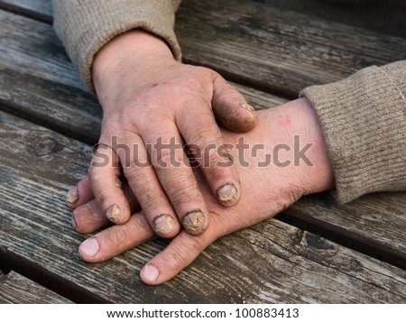 Fungus Infection on Nails Hand elderly man