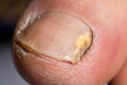 Fungus of nails on the big toe - dermatomycosis and onychomycosis, fungal infection macro photo. Dermatology, treatment of nail mycosis.