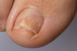 Fungus of nails on the big toe - dermatomycosis and onychomycosis, fungal infection macro photo. Ingrown nail plate. Dermatology, treatment of mycosis