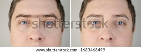 Fused eyebrows and sinofreeze in men. Photo before and after modeling eyebrows in a guy. Male self-care and a visit to a beautician or foreman Сток-фото ©