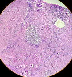 Gallbladder cancer, photo under microscope. Light micrograph 400x showing gallbladder adenocarcinoma