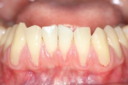 Gingival recession, also known as receding gums, is the exposure in the roots of the teeth caused by a loss of gum tissue and/or retraction of the gingival margin from the crown of the teeth.