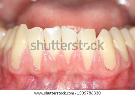 Gingival recession, also known as receding gums, is the exposure in the roots of the teeth caused by a loss of gum tissue and/or retraction of the gingival margin from the crown of the teeth. Stok fotoğraf ©