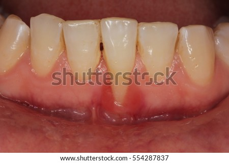Gingival recession due to dental calculus.