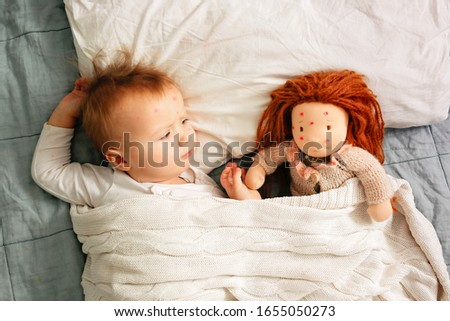 Girl child and a doll lie in bed suffer from chickenpox, funny photo with chickenpox, top view, light lifestyle photo. Waldorf doll and a Caucasian baby