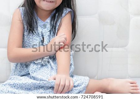 girl scratch the itch with hand , Concept with Healthcare And Medicine. #724708591