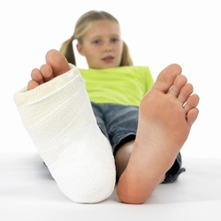 girl with a broken leg (close-up of feet, one with a plaster bandage)