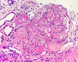 Glomerulus reveals nodular sclerosis and hyaline arteriolosclerosis, magnification 400x, photo under microscope