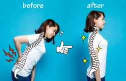 Good posture and bad posture, woman's body silhouette and backbone, chiropractic before after concept