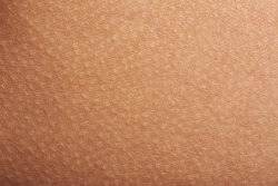 Goose bumps on human skin closeup. Tecture of skin with goose bumps