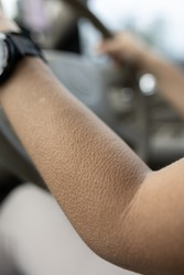 goose pimples close up - woman driving in car with skin reaction to cold