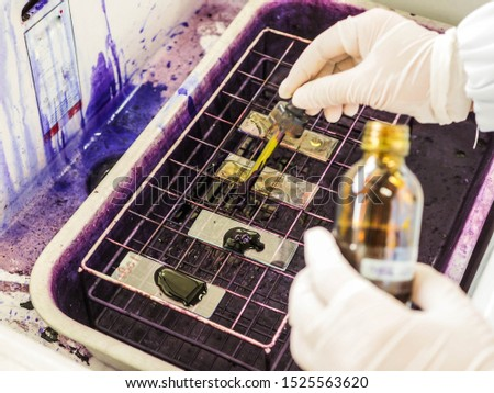 Gram stain process in bacterial  staining. #1525563620
