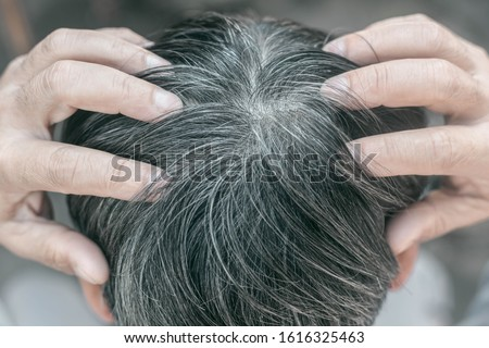 Gray hair problems in older men, old asian senior man with gray hair, white hair or hair loss problem ストックフォト ©