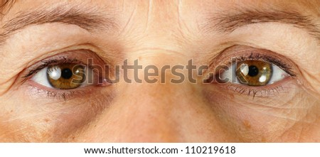 Great detail macro of a very tired or sick middle age woman, with wrinkles, sun damage, veins in the puffy eyes and dark circles under the eyes all showing.