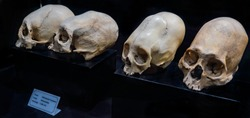 Group of ancient deformed Inca skulls with bone deformation. Remains found in Inca temples on city of Cusco, Peru (on label, cause: crane deformation, shape: dolichocephaly, date)