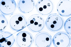 Growing Bacteria in Petri Dishes on agar gel as a part of scientific experiment.
