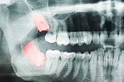 Growing Wisdom Teeth Pain On X-Ray