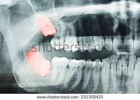 Growing Wisdom Teeth Pain On X-Ray #231350425