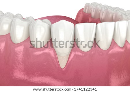 Gum Recession. 3D illustration of Dental problem Stok fotoğraf ©