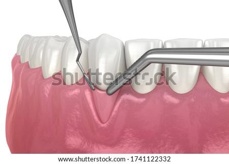 Gum Recession: Soft tissue graft surgery. 3D illustration of Dental  treatment Stockfoto ©