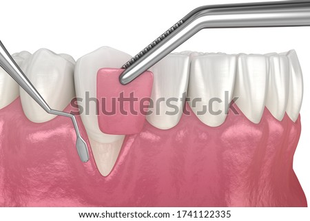 Gum Recession: Soft tissue graft surgery. 3D illustration of Dental  treatment Stok fotoğraf ©