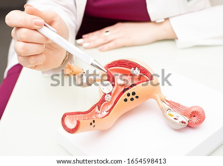 Gynecologist showing uterine structure on a uterus model. Uterus model on gynecologist's desk close-up