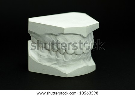 Gypsum Model Plaster Of Tooth - Side View Stock Photo 10563598 ...