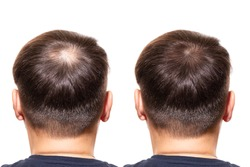 hair loss. Care Concept. transplantation hair. men view from the back, comparison of hair before and after transplantation. bald head.  baldness treatment. medicine. thick healthy hair. head.