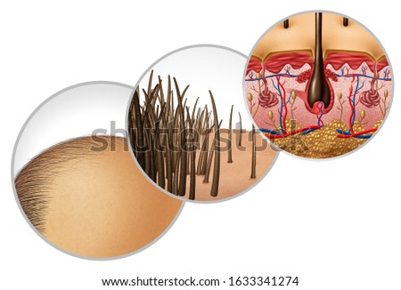 Hair loss diagram and baldness or bald head hair loss as a receding hairline cosmetic follicle thinning and alopecia as a close up of  skin anatomy with 3D illustration elements.