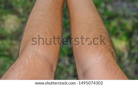 Hairs on the arm. Human hairs. Arm hairs.