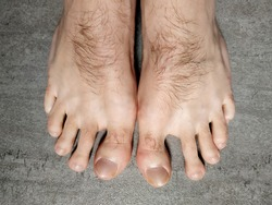 Hallux Valgus man with hairy  toe and foot