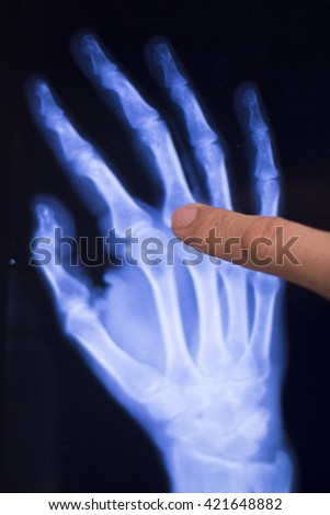 how to read x ray result