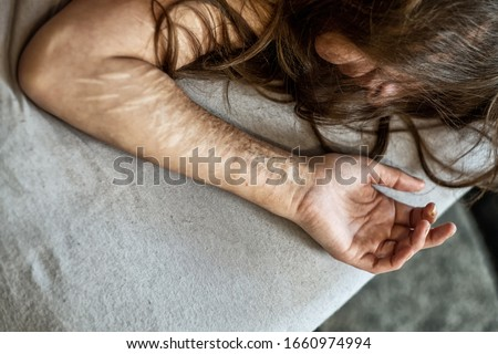 Hand, arm and hair of a Woman with heavy Cuts and scars of self-mutilation in frustration, self-abusing, Borderline personality disorder, copy space  Stock photo ©