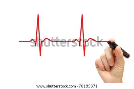 Hand drawing ECG