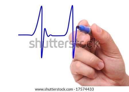 Hand drawing ecg graph isolated on white background