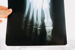 Hand holding an x-ray roentgen with a broken foot.