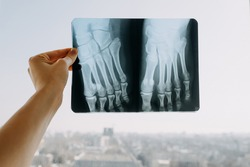 Hand holding an x-ray roentgen with a broken male foot.